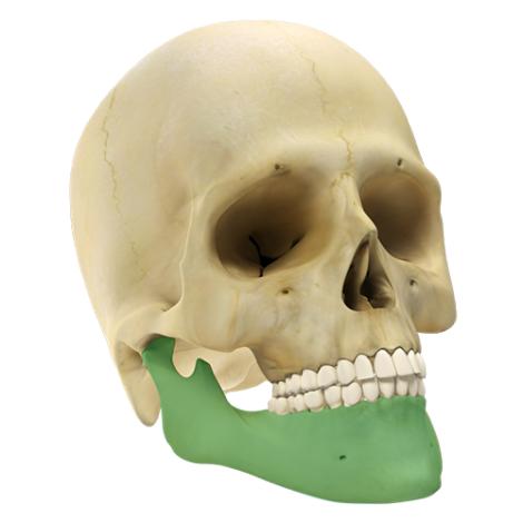 Maxilo Facial GII 2.4 - Sistema de Macro Placas