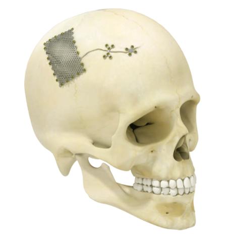 Crafix Cranium®