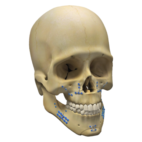 Dual Side® - Orthognathic System