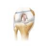 Ligfix® - Ligament Fixing System