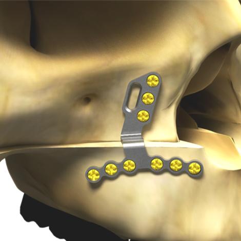Osteotomia para aumento da maxila