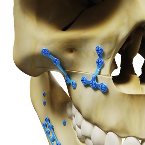 Osteotomy for maxillary enlargement