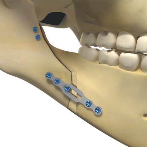 Osteotomia para aumento da mandíbula