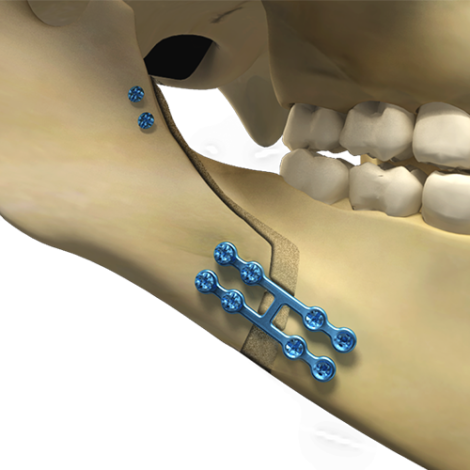 Osteotomy to enlarge the mandible