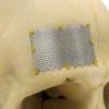 Reconstrução do seio frontal